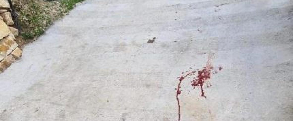 إصابة طفلة في هجوم للمستوطنين جنوب نابلس