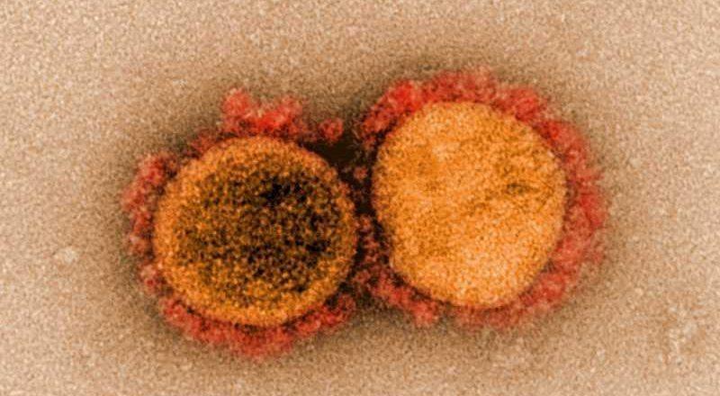 منظمة الصحة ترسم خريطة 4 فيروسات جديدة